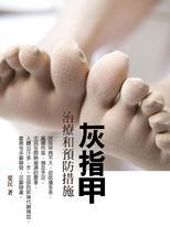 灰指甲《治療和預防措施》